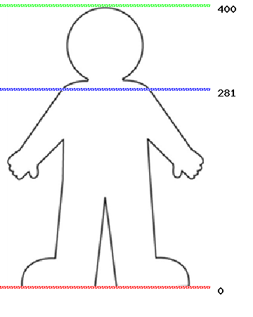 Diagram showing number of respiratory papilloma patients recruited to the study
